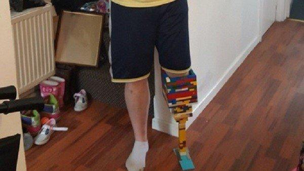 Se construye una prótesis con piezas LEGO